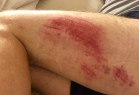 Thigh on the evening of the fall.