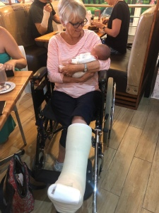 Mama in a huge plaster cast